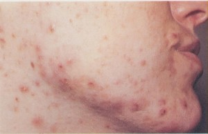 acne 001