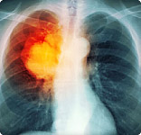 156x150_lung_cancer_overview_slideshow